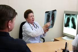 Онкологи предупредили о новом симптоме рака легких