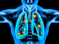 Ученые нашли универсальное средство от повреждений легких при гриппе и COVID-19