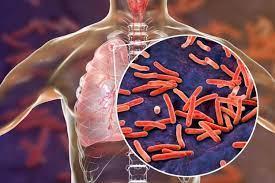 Российские биологи установили: туберкулез выживает за счет ресурсов человека