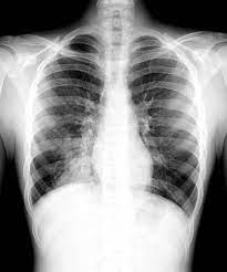 Пневмонию и сепсис связали с сердечно- сосудистыми заболеваниями